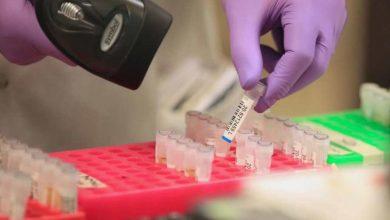 يحذر-أخصائي-الأمراض-من-أن-لقاح-فيروس-كورونا-قد-يستغرق-بعض-الوقت-للوصول