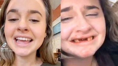 """كانت-فتاة-في-حالة-سكر-تصوّر-فيديو-،-ثم-حدث-شيء-ما-برزت-أسنانه-،-قال-المشاهد-""""يا-إلهي"""""""