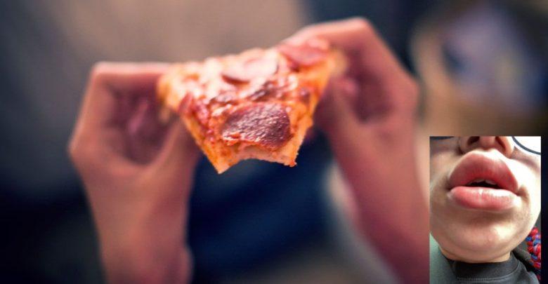 تم-إرسال-البيتزا-التي-كنت-أعاني-من-الحساسية-،-وتورم-وجه-المرأة-بمجرد-تناولها-؛-الآن-الشركة-تعتذر-عن-الخطأ